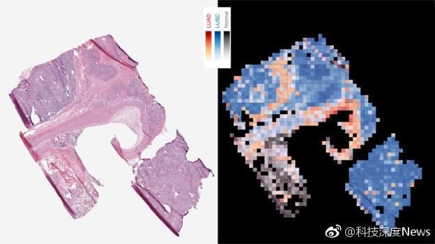 Google AI 最新应用,成功辨识肿瘤突变影像